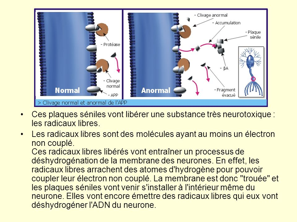 Ces plaques séniles vont libérer une substance très neurotoxique : les radicaux libres.