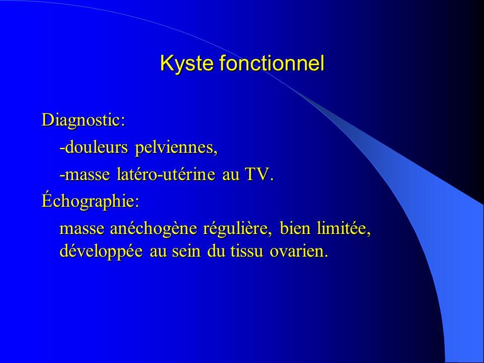 Kyste fonctionnel Diagnostic: -douleurs pelviennes,
