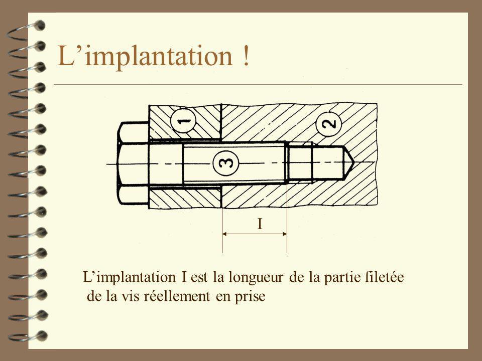 L'implantation . I. L'implantation I est la longueur de la partie filetée.