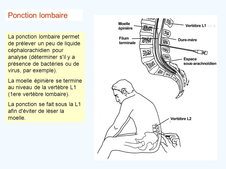 Ponction lombaire