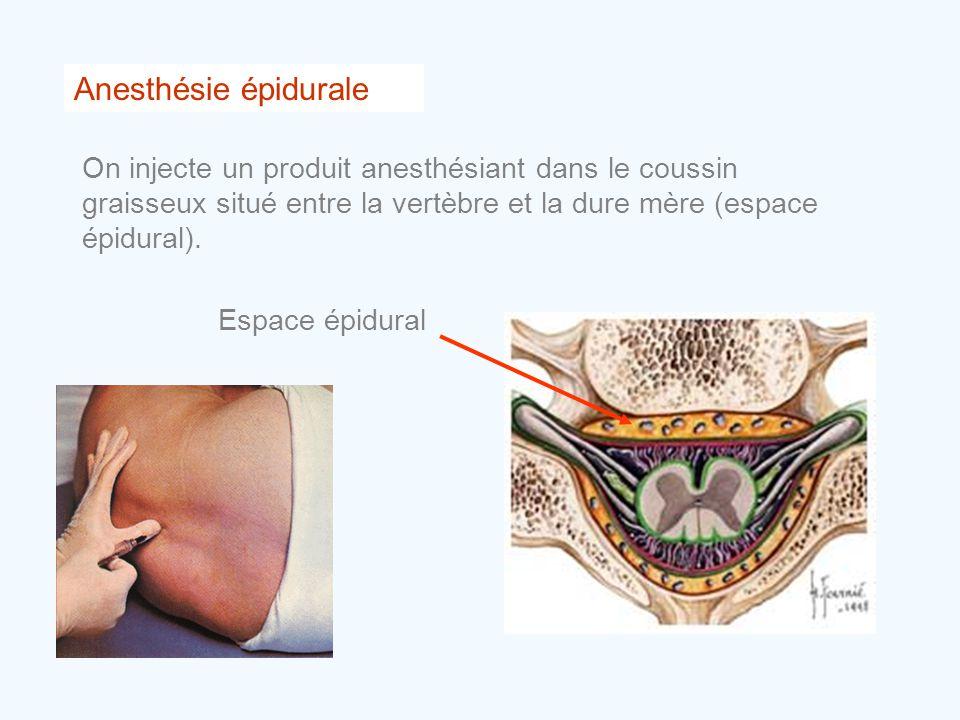 Anesthésie épidurale On injecte un produit anesthésiant dans le coussin graisseux situé entre la vertèbre et la dure mère (espace épidural).