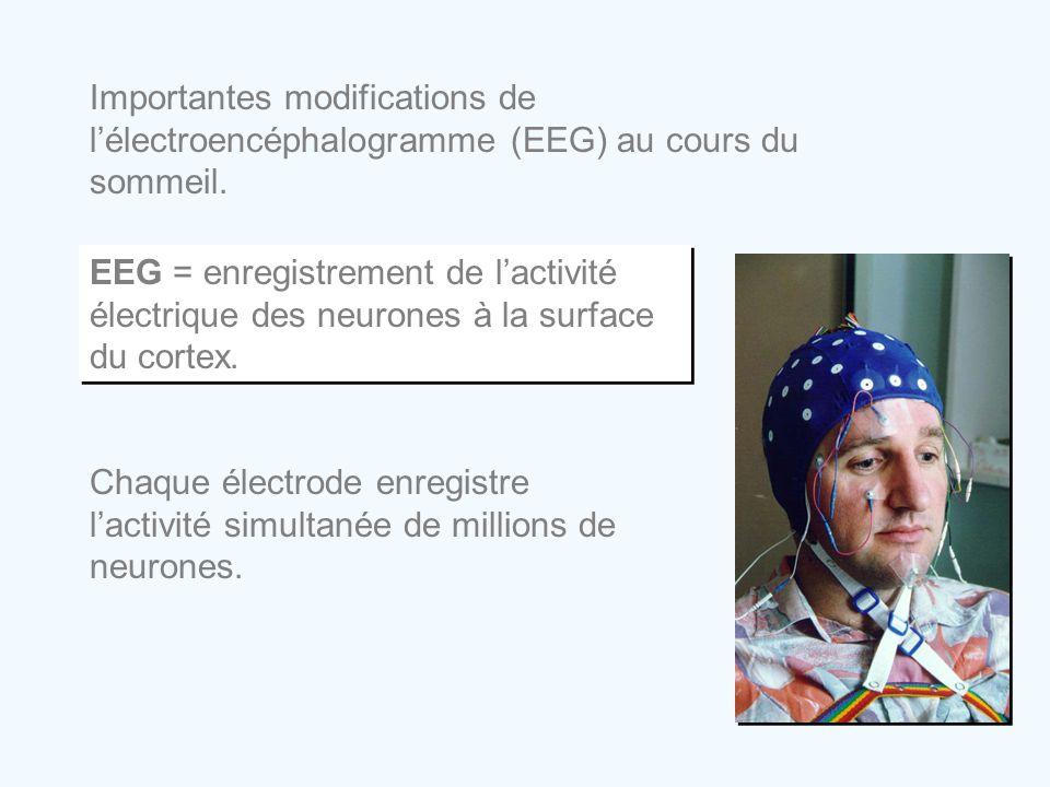 Importantes modifications de l'électroencéphalogramme (EEG) au cours du sommeil.