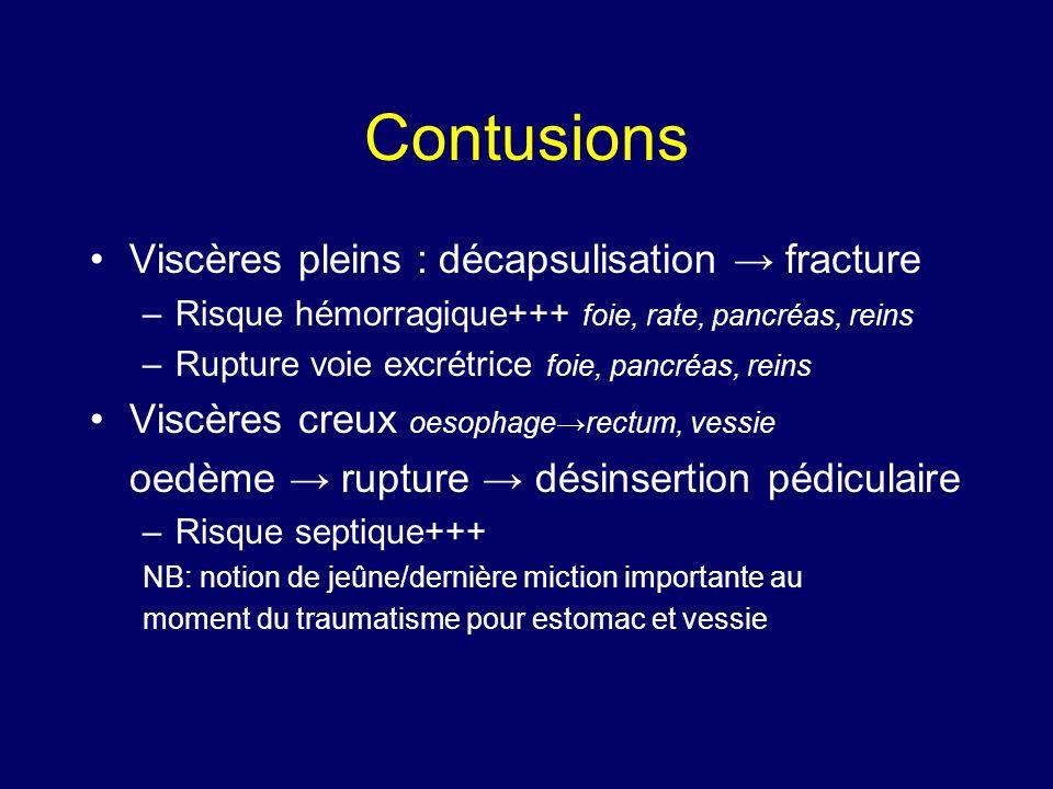 Contusions Viscères pleins : décapsulisation → fracture