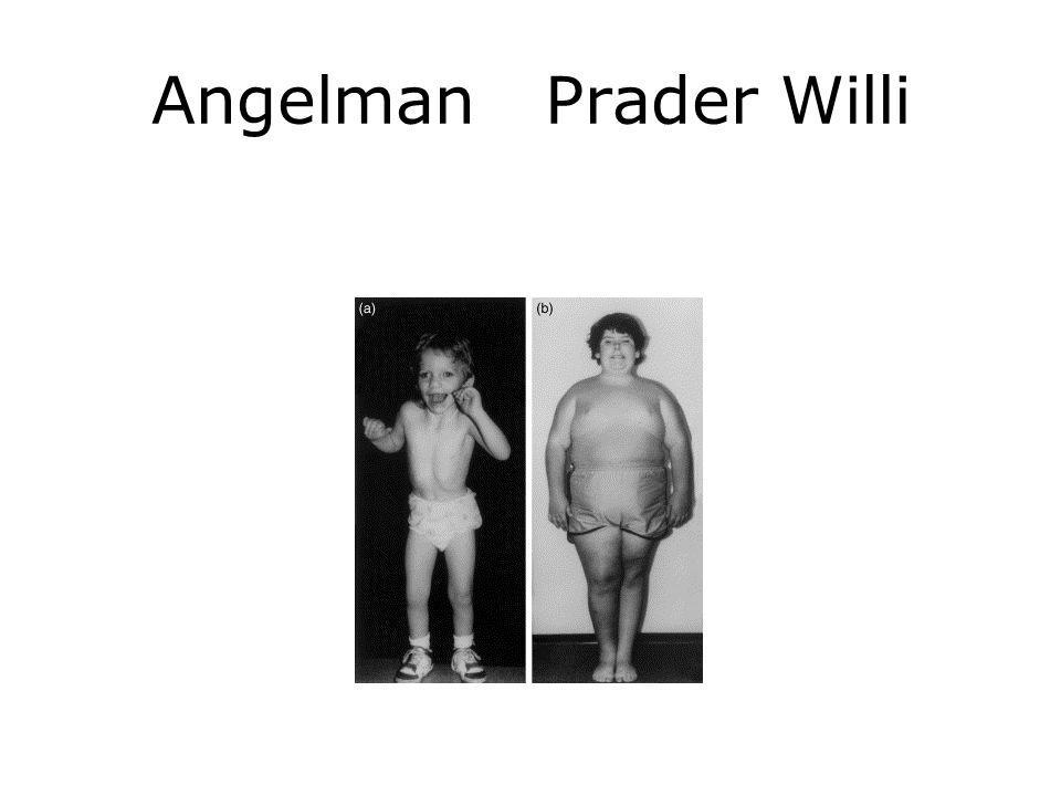 Angelman Prader Willi