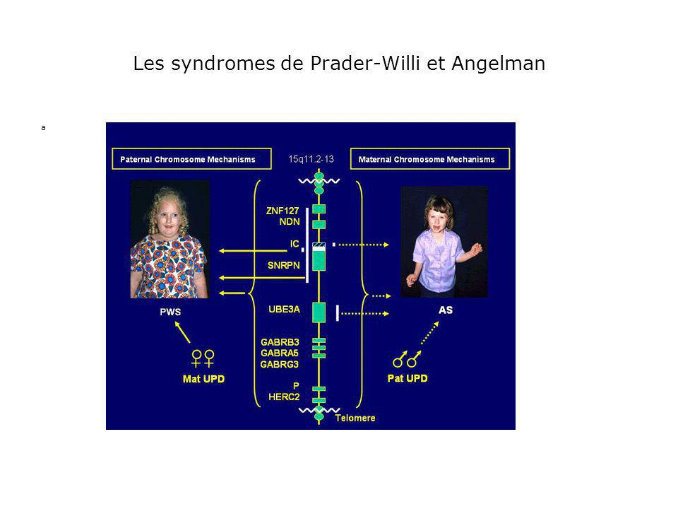 Les syndromes de Prader-Willi et Angelman