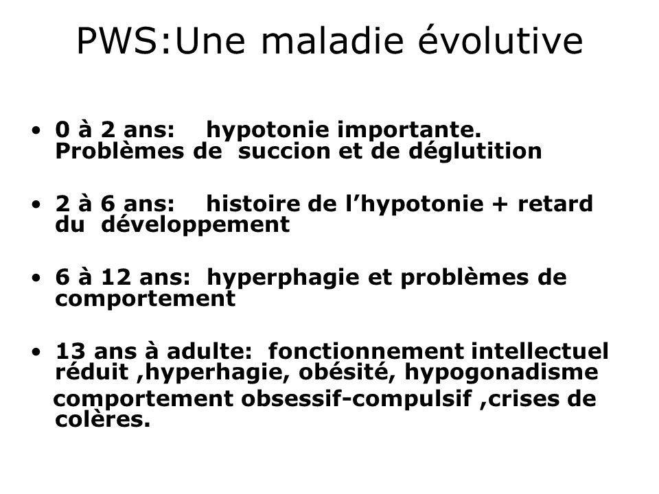 PWS:Une maladie évolutive