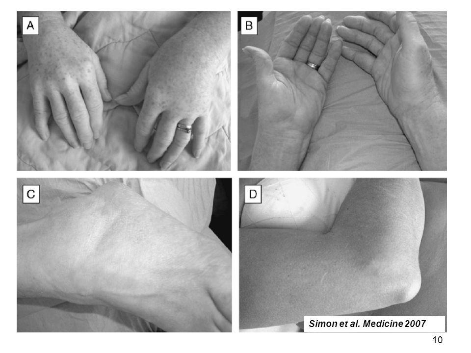 Simon et al. Medicine 2007