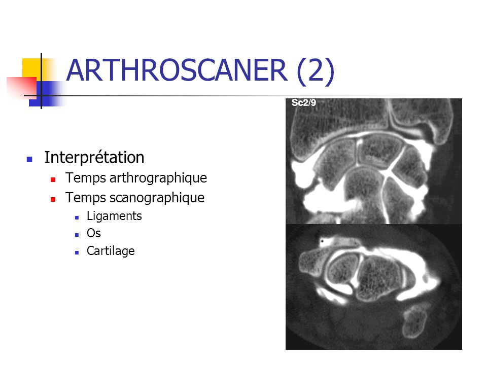 ARTHROSCANER (2) Interprétation Temps arthrographique