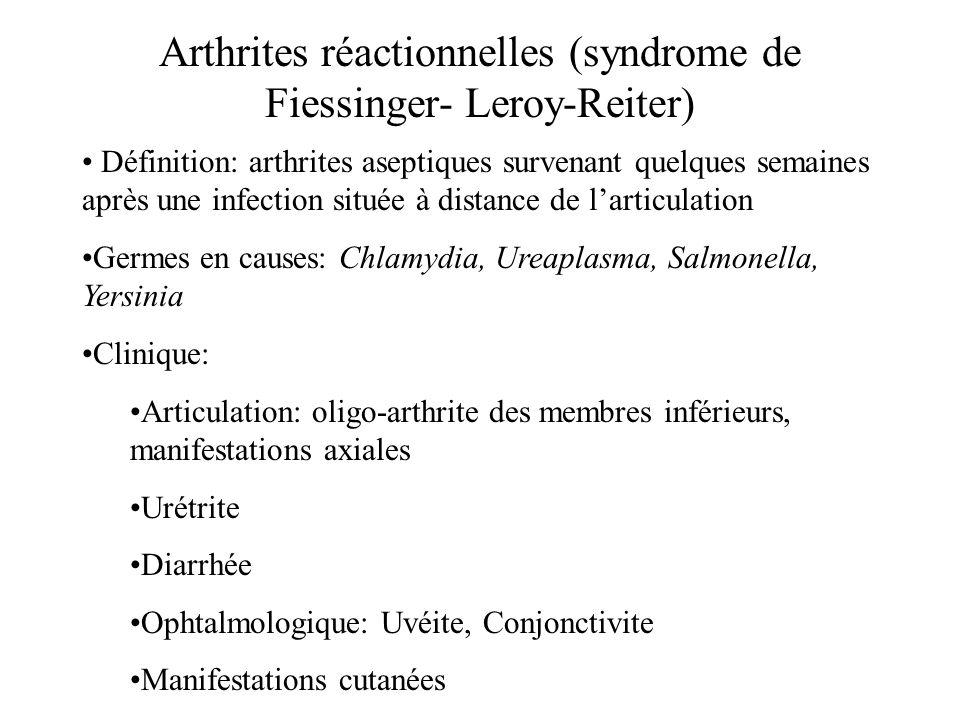 Arthrites réactionnelles (syndrome de Fiessinger- Leroy-Reiter)