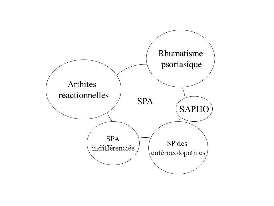 Rhumatisme psoriasique Arthites réactionnelles SPA SAPHO SPA SP des