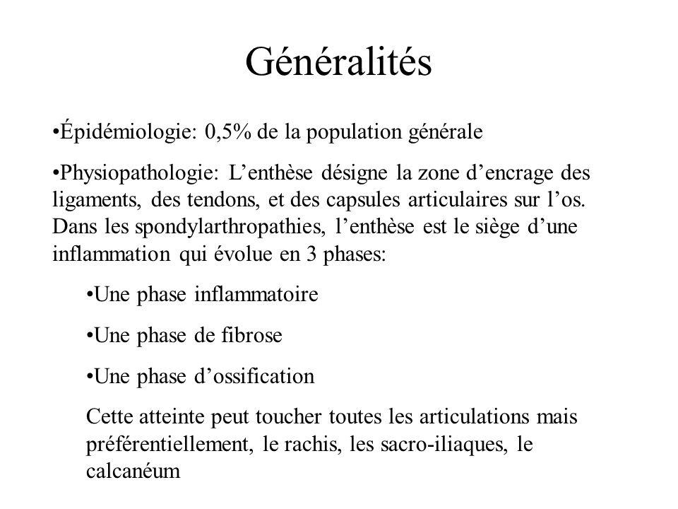 Généralités Épidémiologie: 0,5% de la population générale