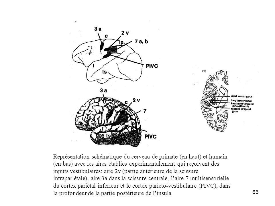 Représentation schématique du cerveau de primate (en haut) et humain (en bas) avec les aires établies expérimentalement qui reçoivent des inputs vestibulaires: aire 2v (partie antérieure de la scissure intrapariétale), aire 3a dans la scissure centrale, l'aire 7 multisensorielle du cortex pariétal inférieur et le cortex pariéto-vestibulaire (PIVC), dans la profondeur de la partie postérieure de l'insula
