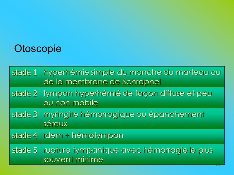 Otoscopie stade 1. hyperhémie simple du manche du marteau ou de la membrane de Schrapnel. stade 2.
