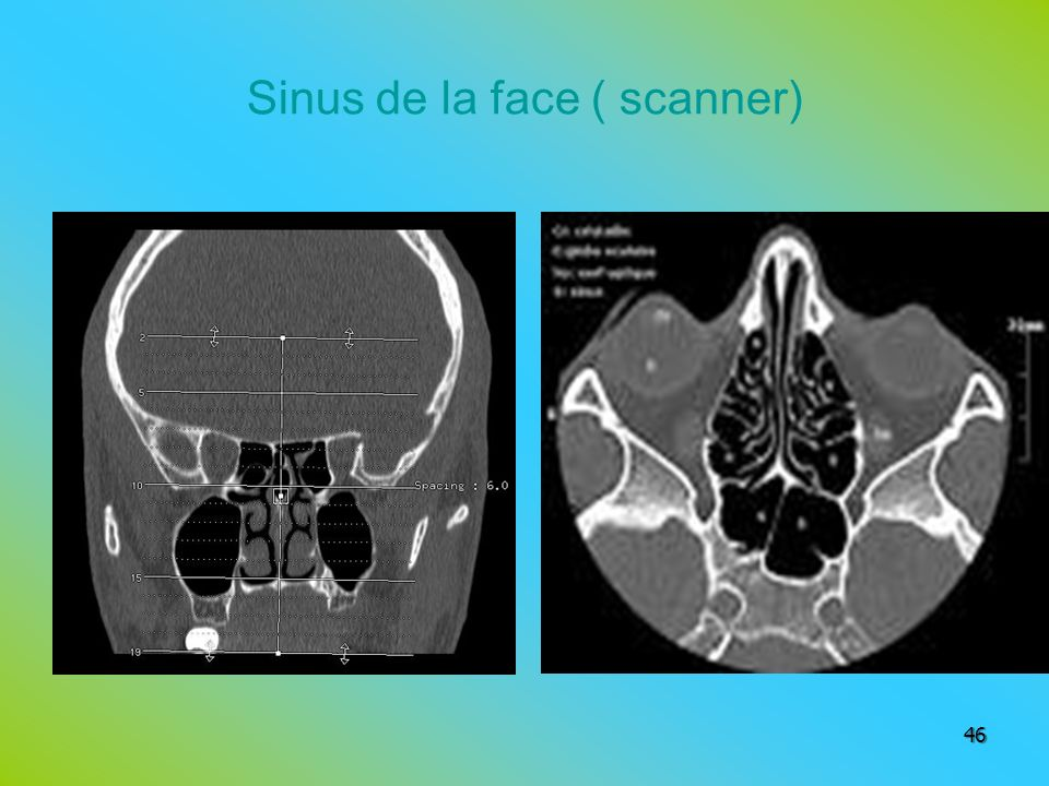 Sinus de la face ( scanner)