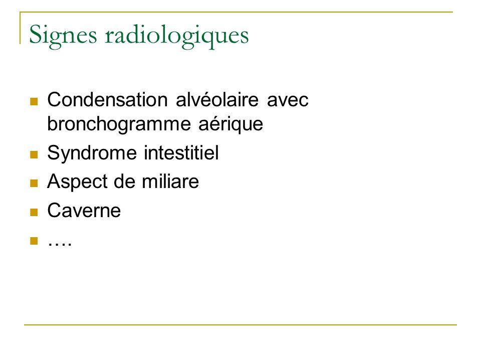 Signes radiologiques Condensation alvéolaire avec bronchogramme aérique. Syndrome intestitiel. Aspect de miliare.