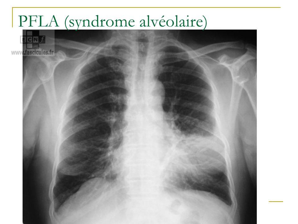 PFLA (syndrome alvéolaire)