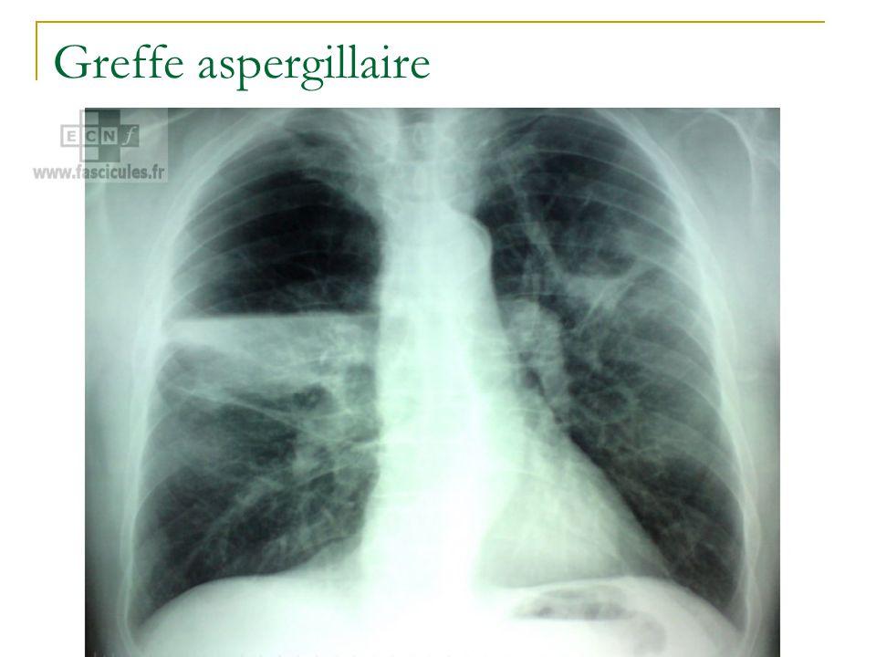 Greffe aspergillaire