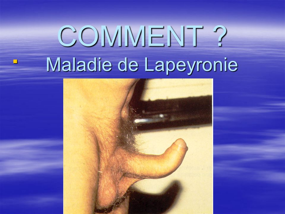COMMENT Maladie de Lapeyronie