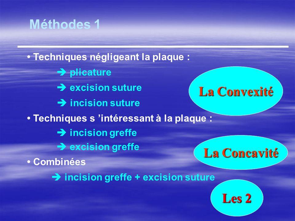 La Convexité La Concavité Les 2