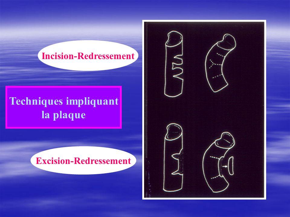 Incision-Redressement Techniques impliquant Excision-Redressement