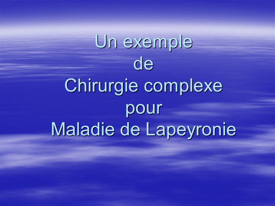 Un exemple de Chirurgie complexe pour Maladie de Lapeyronie