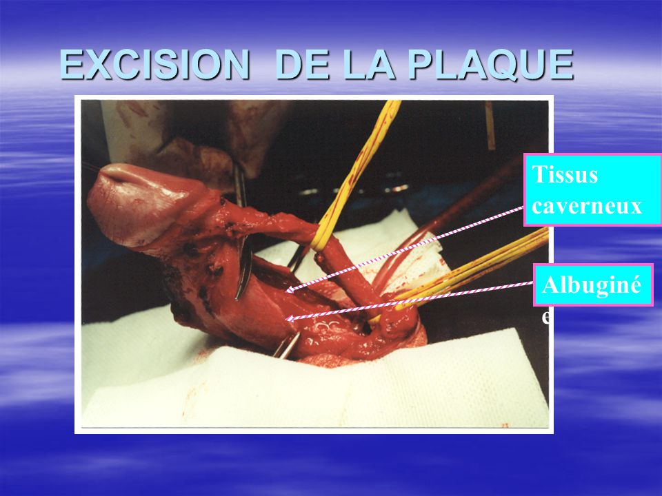 EXCISION DE LA PLAQUE Tissus caverneux Albuginée