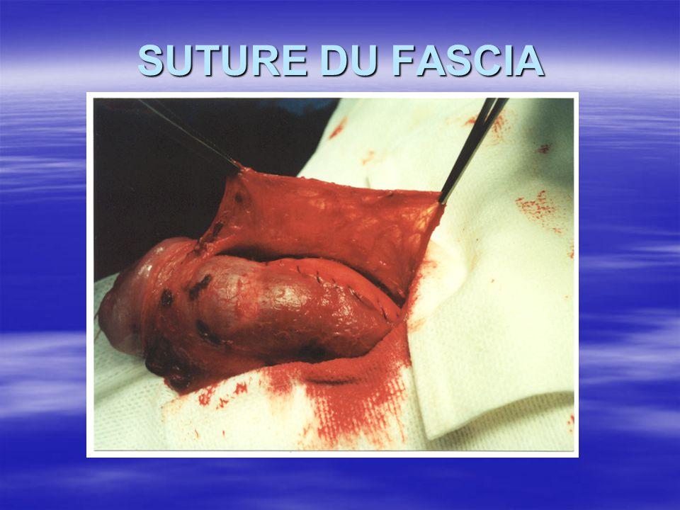 SUTURE DU FASCIA