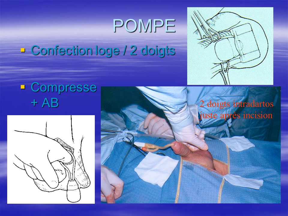 POMPE Confection loge / 2 doigts Compresse + AB 2 doigts intradartos