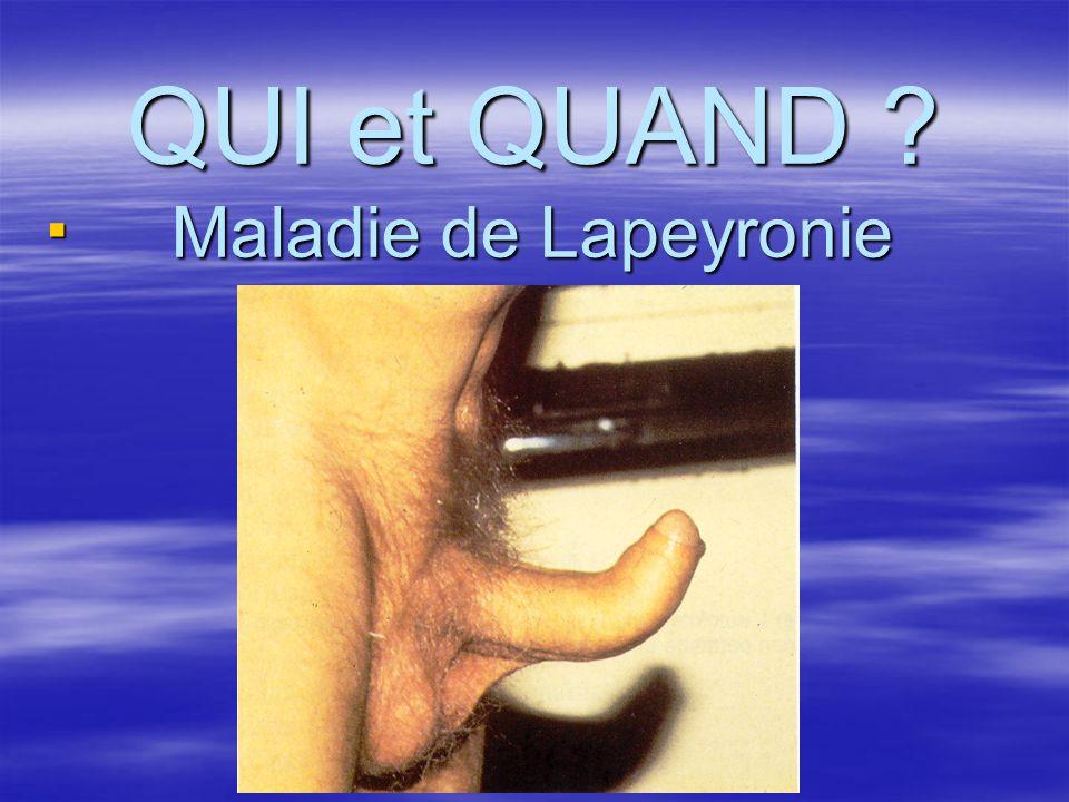 QUI et QUAND Maladie de Lapeyronie