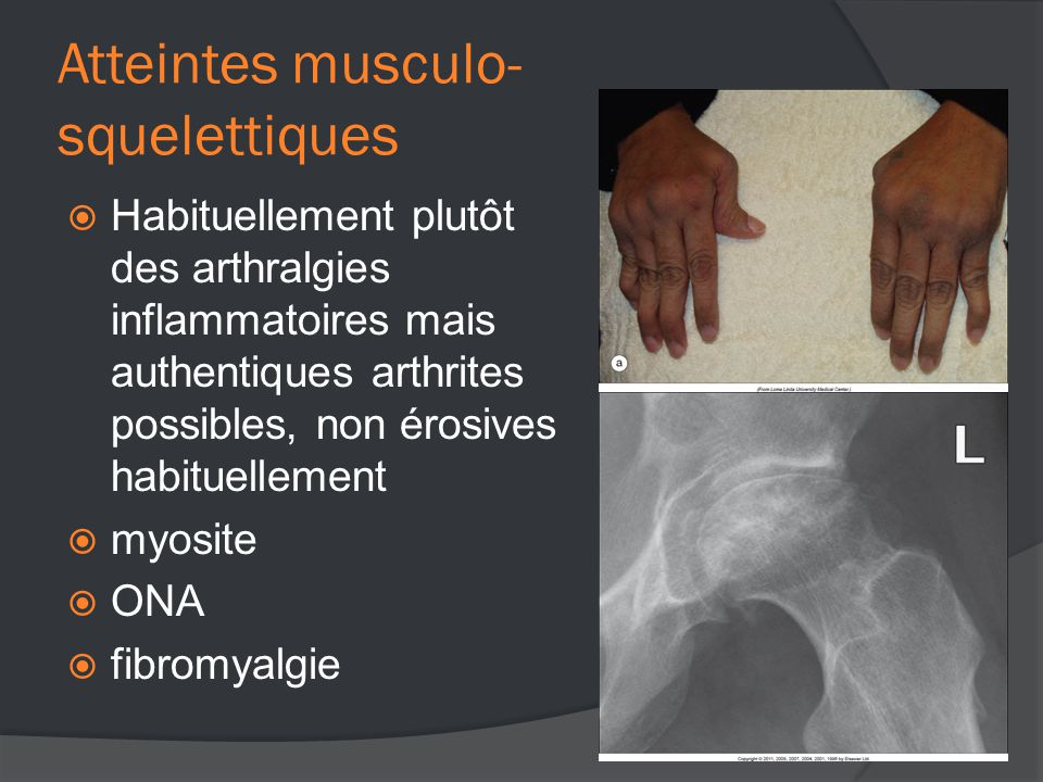 Atteintes musculo- squelettiques