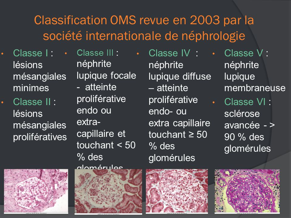 Classification OMS revue en 2003 par la société internationale de néphrologie