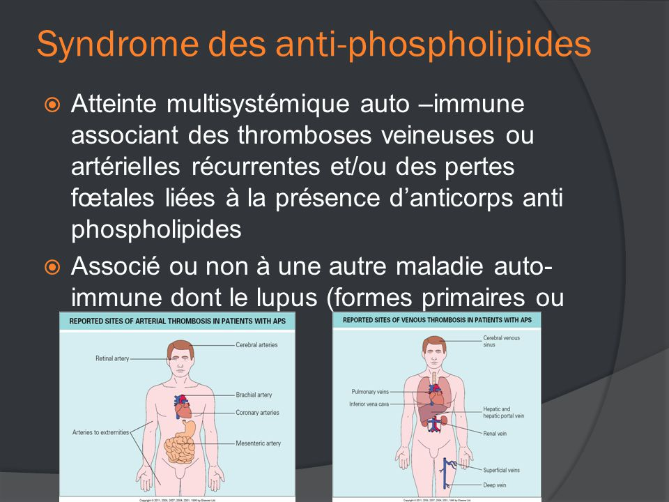 Syndrome des anti-phospholipides