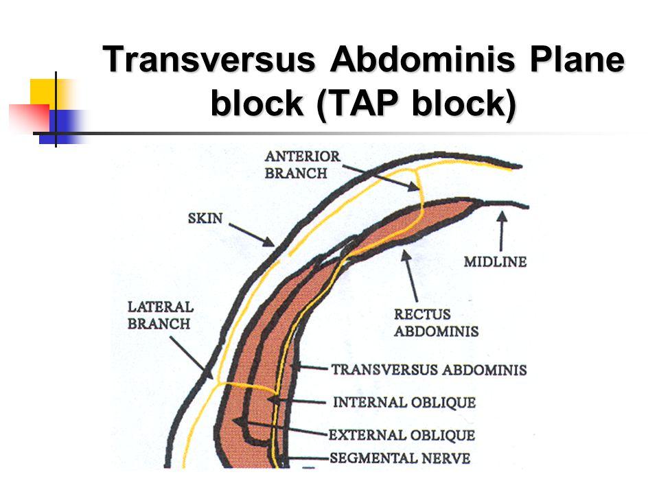 Transversus Abdominis Plane block (TAP block)