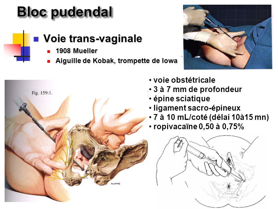 Bloc pudendal Voie trans-vaginale voie obstétricale