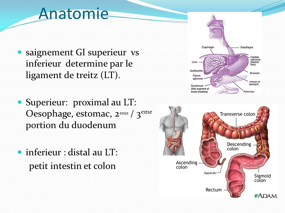 Anatomie saignement GI superieur vs inferieur determine par le ligament de treitz (LT).