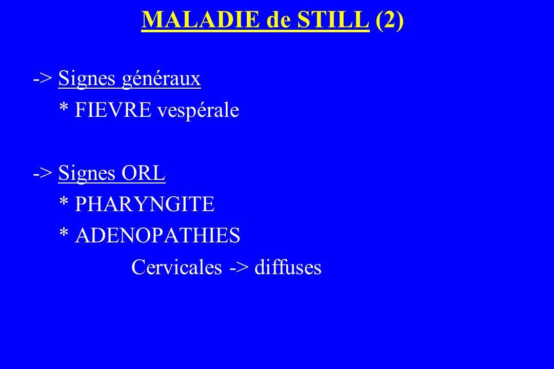 MALADIE de STILL (2) -> Signes généraux * FIEVRE vespérale