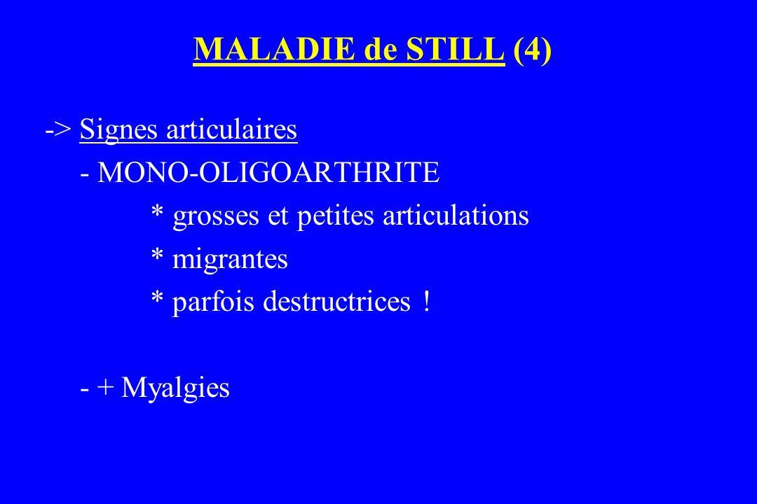 MALADIE de STILL (4) -> Signes articulaires - MONO-OLIGOARTHRITE