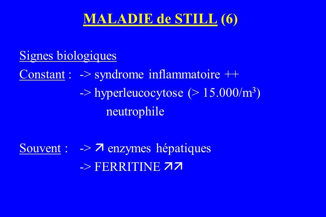 MALADIE de STILL (6) Signes biologiques