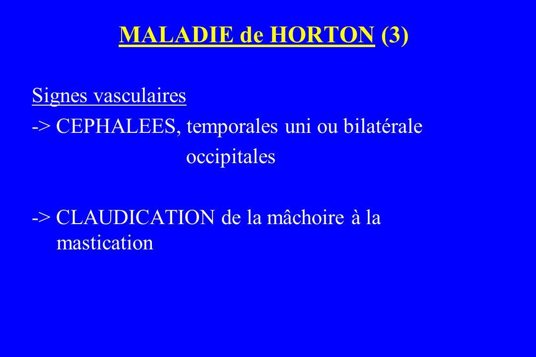 MALADIE de HORTON (3) Signes vasculaires