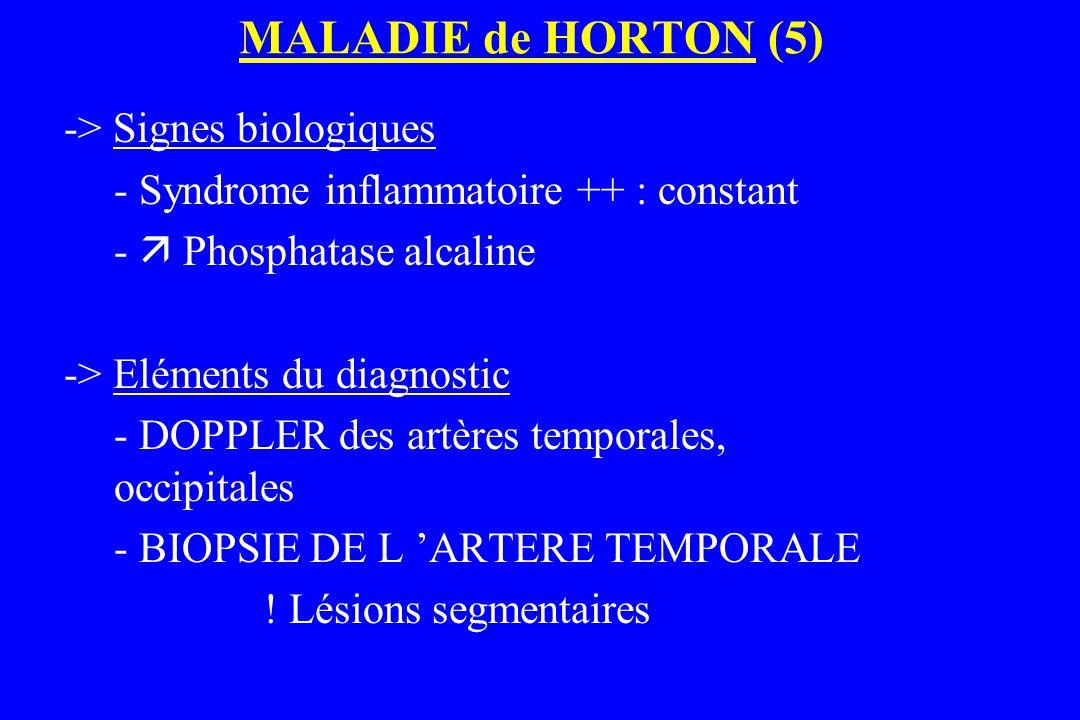 MALADIE de HORTON (5) -> Signes biologiques