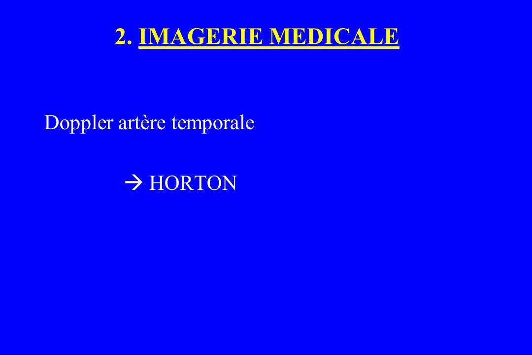 Doppler artère temporale  HORTON