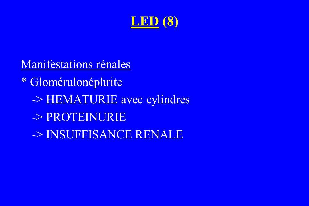 LED (8) Manifestations rénales * Glomérulonéphrite