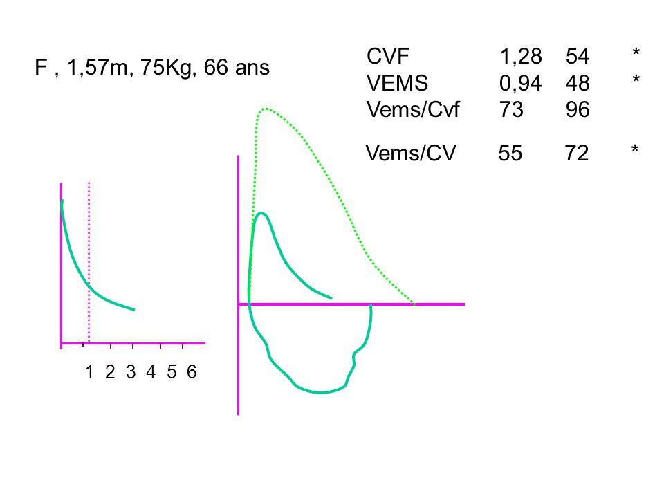 CVF 1,28 54 * F , 1,57m, 75Kg, 66 ans VEMS 0,94 48 * Vems/Cvf 73 96