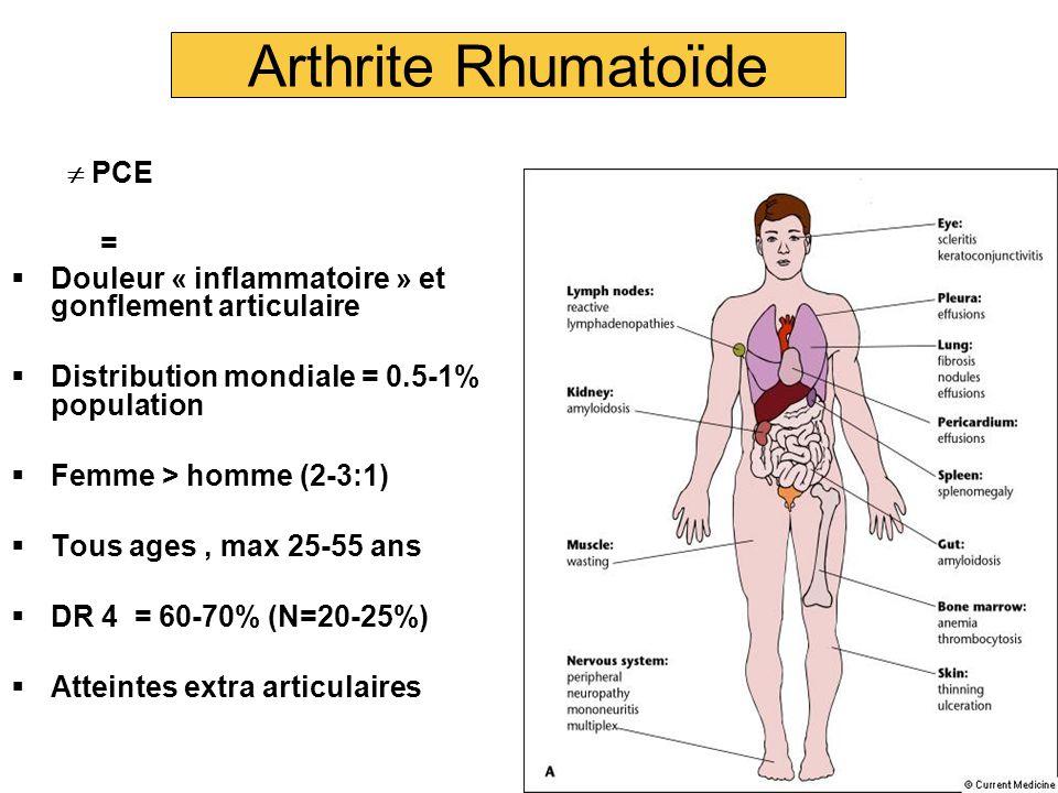 Arthrite Rhumatoïde  PCE =