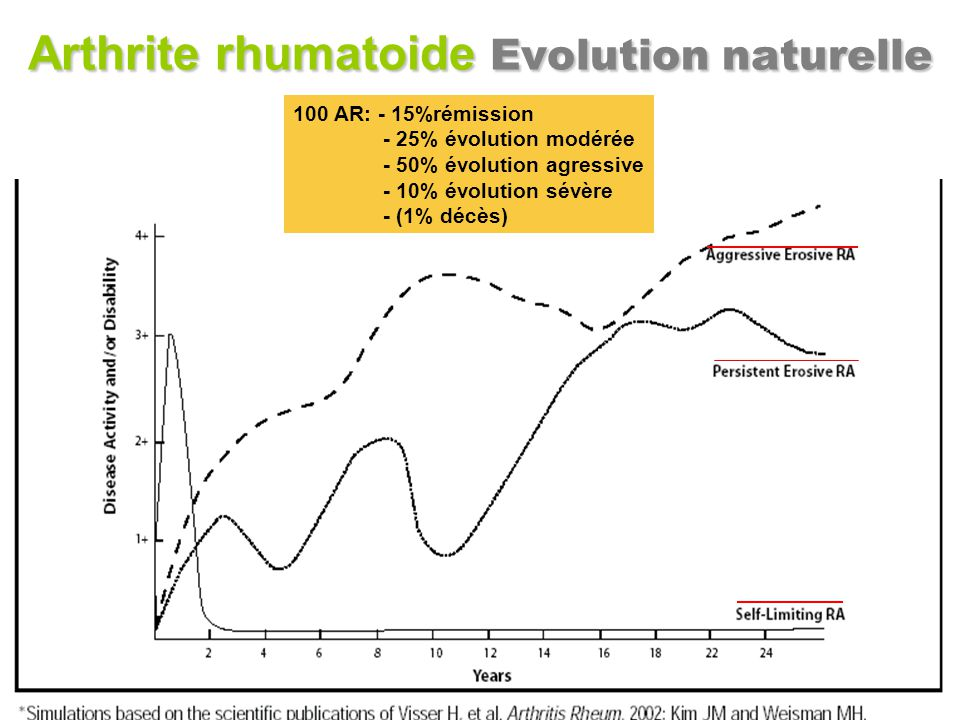 Arthrite rhumatoide Evolution naturelle