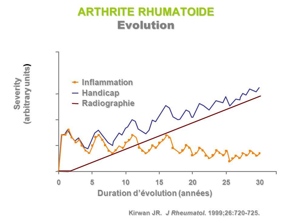 ARTHRITE RHUMATOIDE Evolution