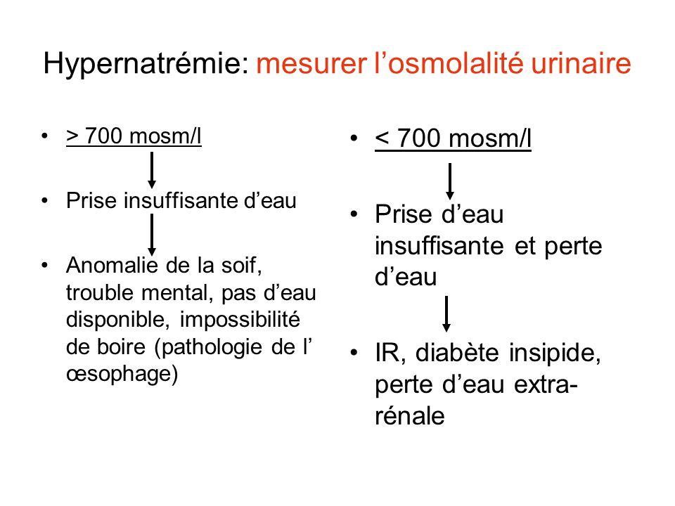 Hypernatrémie: mesurer l'osmolalité urinaire