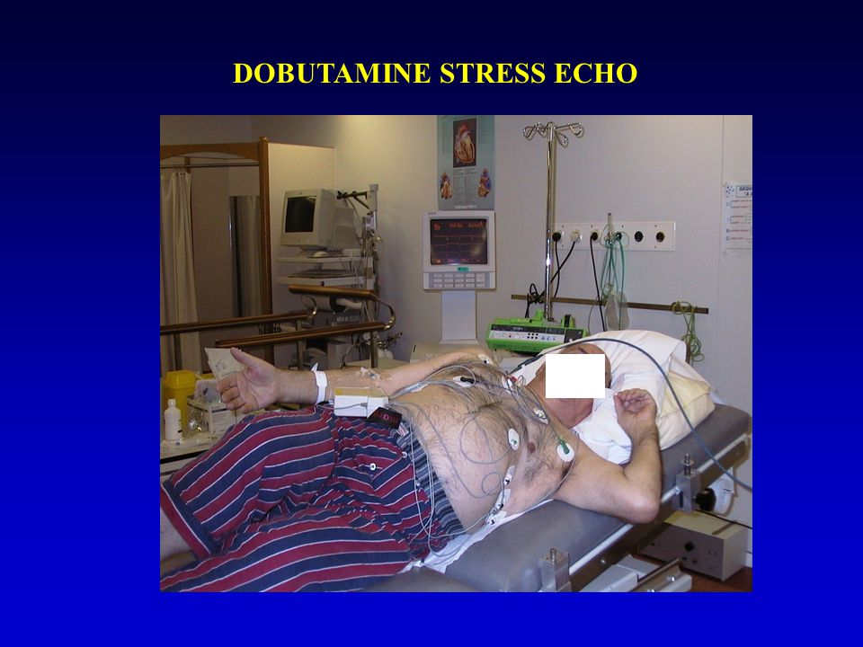 DOBUTAMINE STRESS ECHO