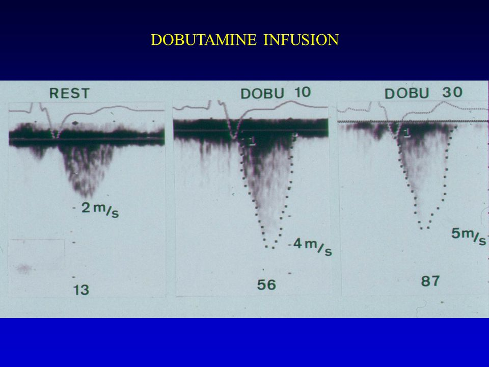 DOBUTAMINE INFUSION