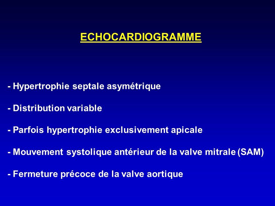 ECHOCARDIOGRAMME - Hypertrophie septale asymétrique